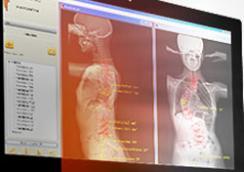 EOS Imaging: Première installation au Vietnam au sein du plus grand centre de radiologie